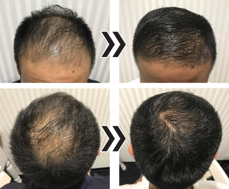 頭皮の施術 before-after